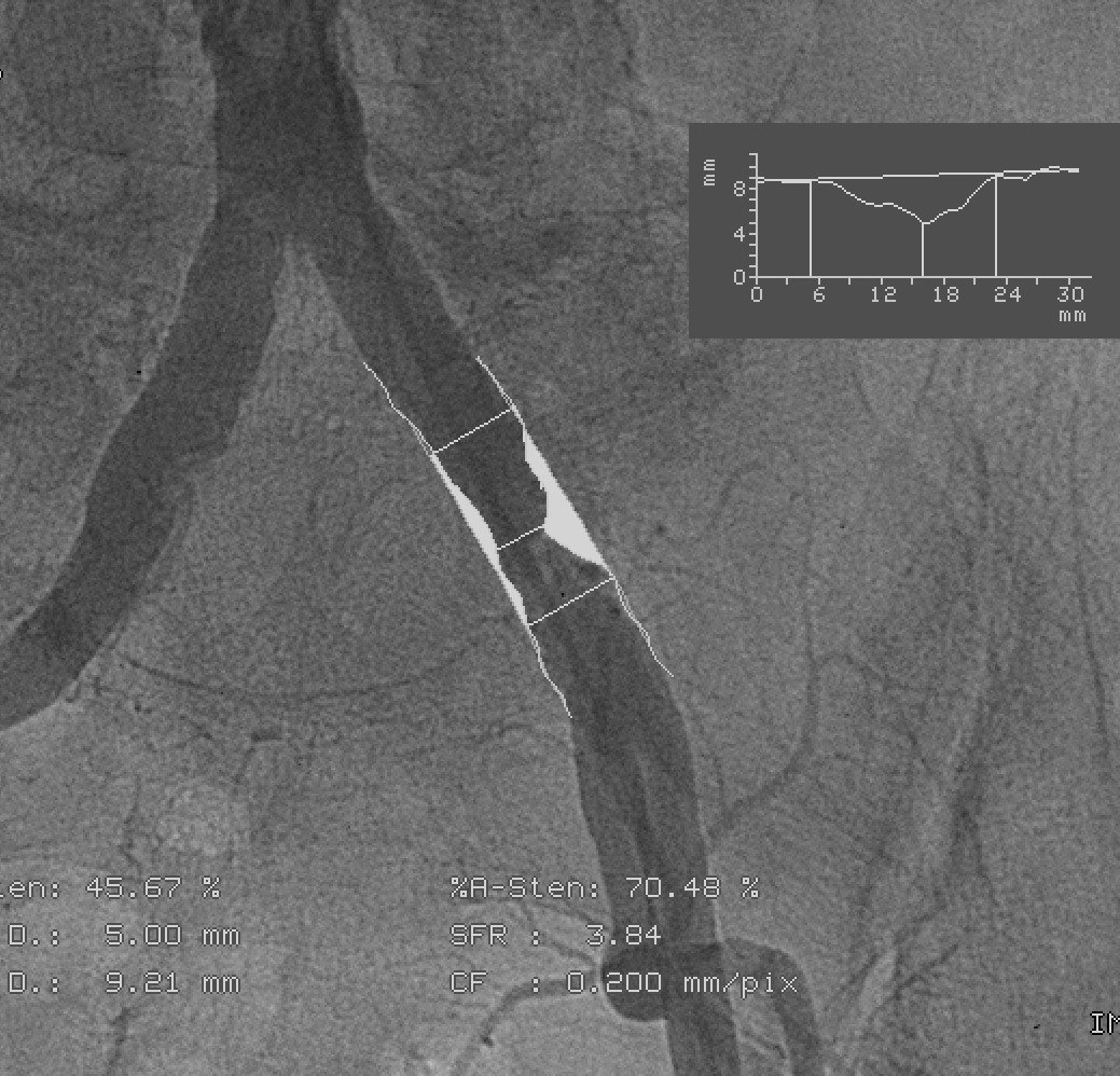 Chirurgia naczyniowa - Klinika wKlaudynie