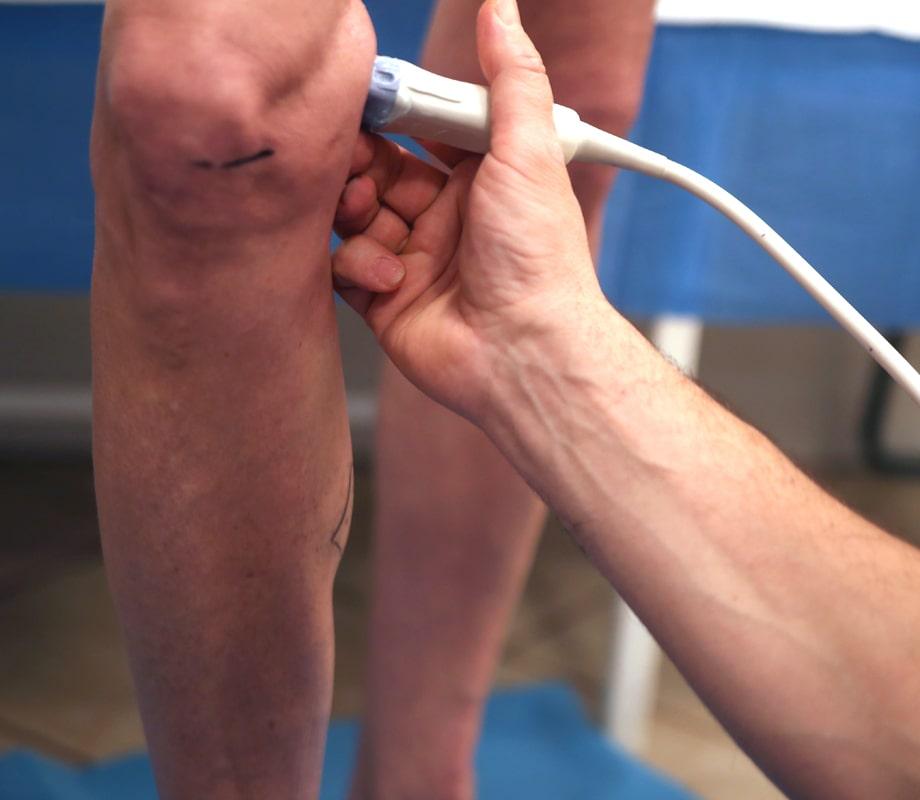 Żylaki – co powinno Cię niepokoić - Klinika wKlaudynie